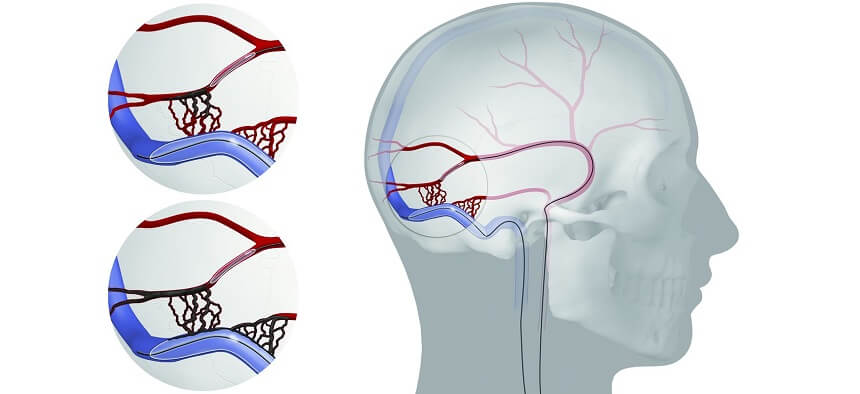Brain Arteriovenous Fistula Embolization in Pune
