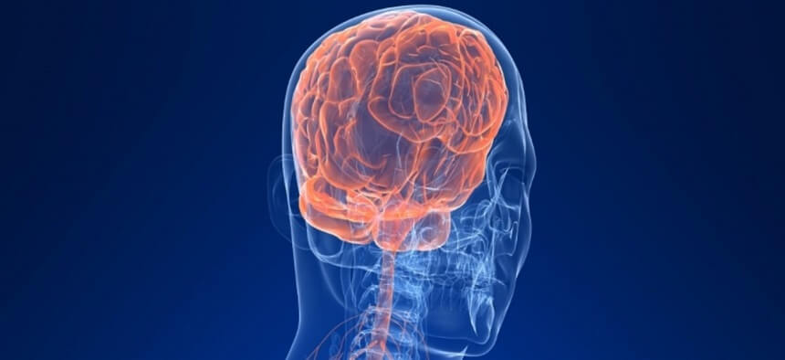Neurointerventional Radiology Surgery in Pune